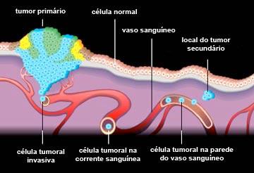 metastase ossea