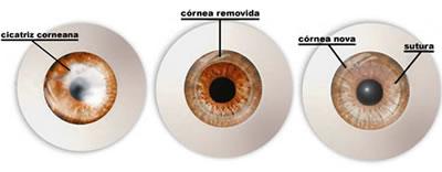 transplante de córnea