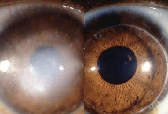 08808d6219aab Eles já conseguiram restaurar, parcialmente, a visão de ratos, em  laboratório. A descoberta poderia ajudar a restaurar este problema de  visão, ...