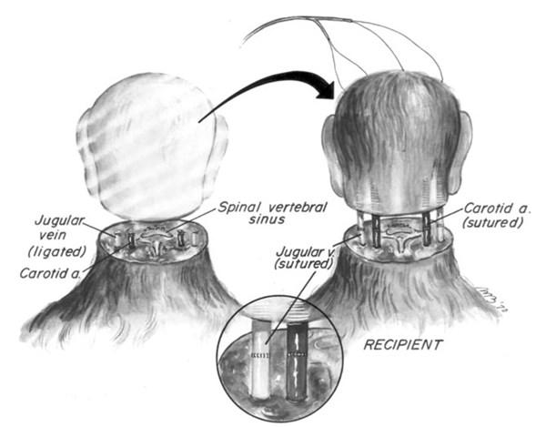 transplante de cabeça