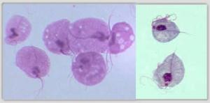 Trichomonasvaginalis1