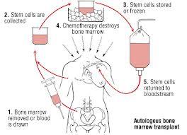 transplantedemedula