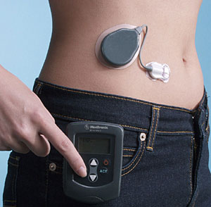 artificial-pancreas