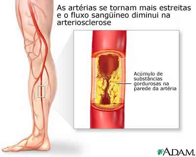 arteriosclerosis-of-the-extremities-picture