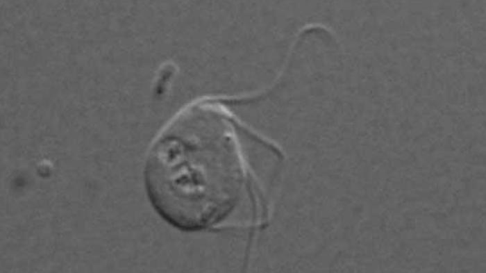 Monocercomonoides-eucariota