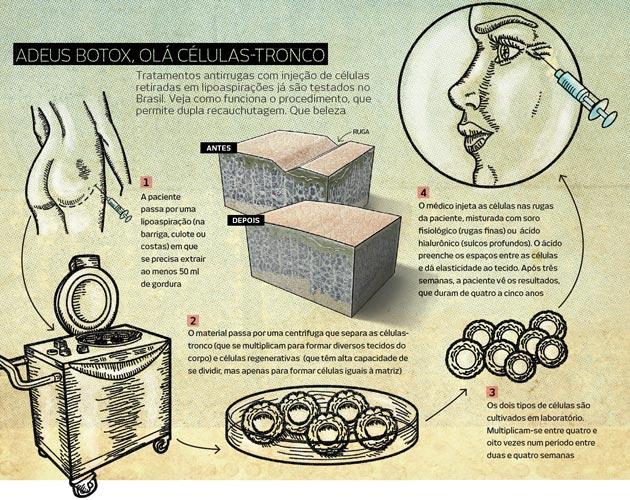 celuas tronco