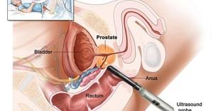 3-verdades-sobre-prostata-300x157