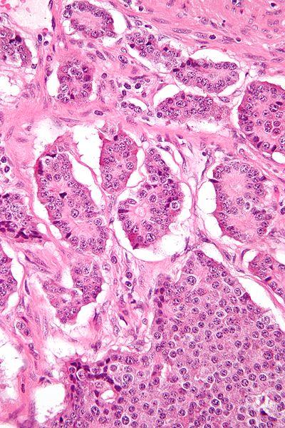 tumor neuroendocrino