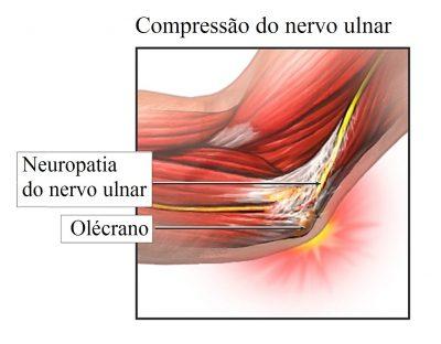 compressão-do-nervo-ulnar-400x312