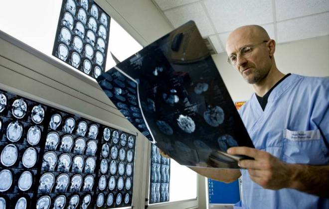transplante de crebro