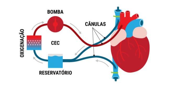 transplante-coracao-2