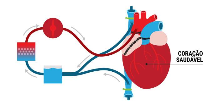 transplante-coracao-4
