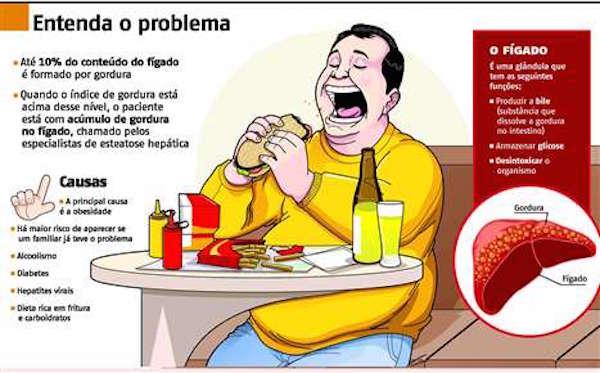 Gordura-no-fígado-esteatose1