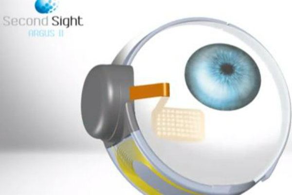 olho bionico2
